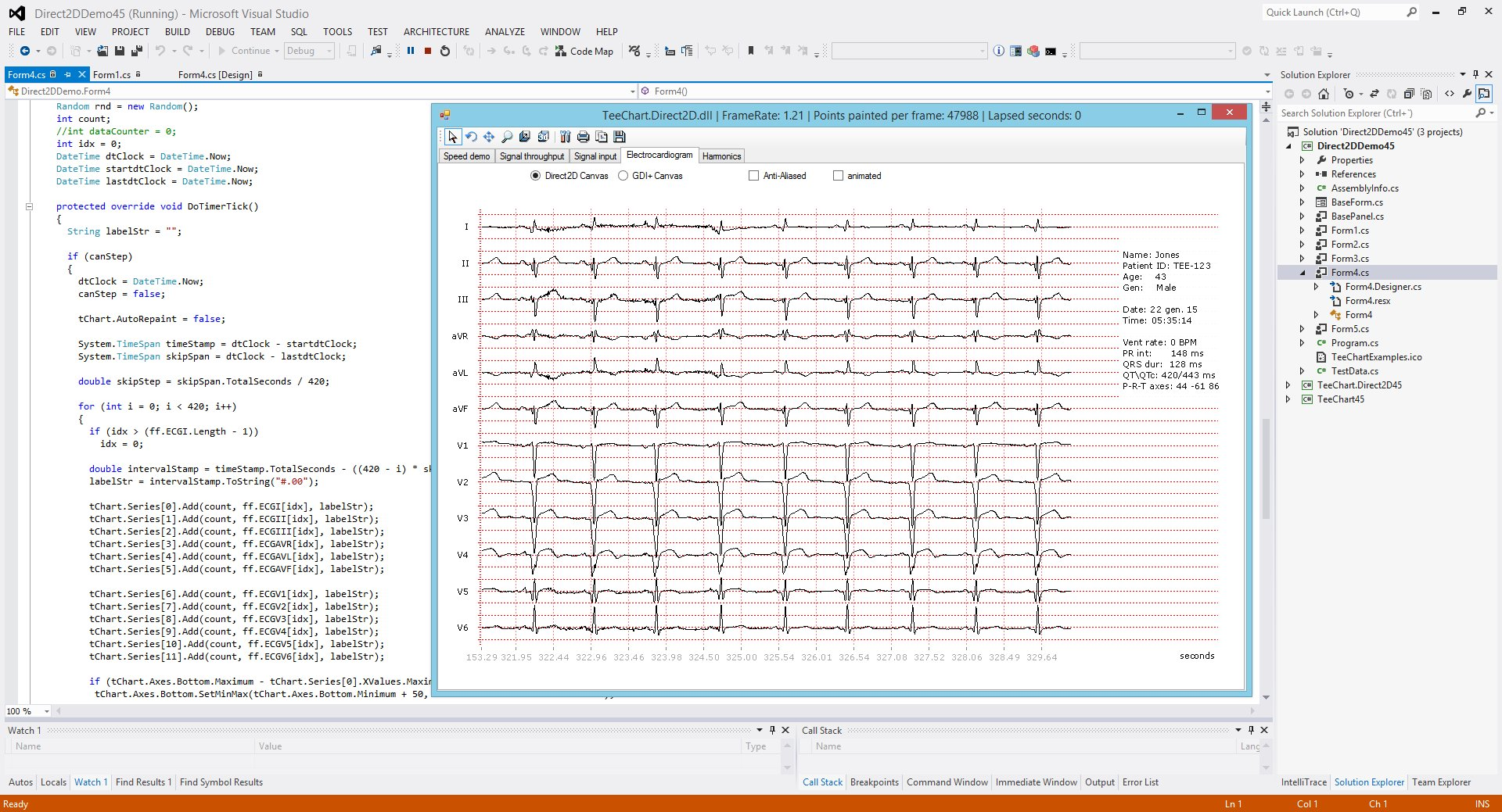 Sample Cardiac Rhythm on Chart. Using TeeChart for .NET in Visual Studio .NET.